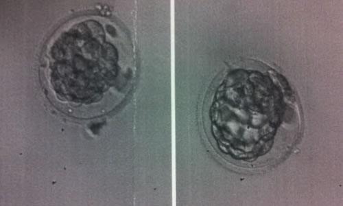 Embriyo Glue Yapıştırıcı