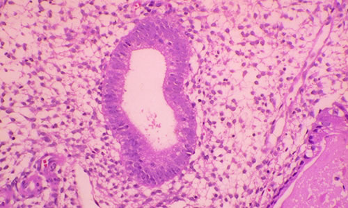 Endometrial Hiperplazi Belirtileri