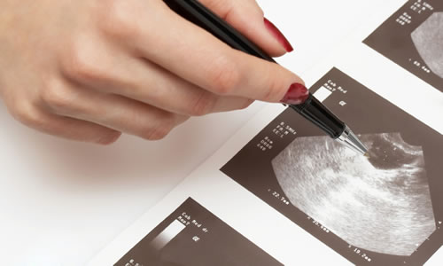 Yumurtalık Hiperstimulasyon Sendromu