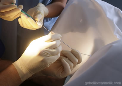 embriyo transferi