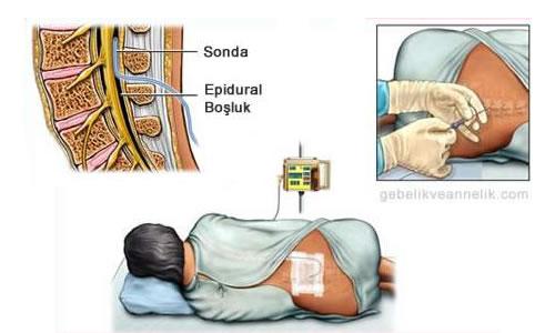 epidraul anestezi