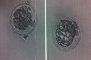 Embriyo Glue Nedir?