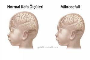 Bebeğin Kafasının Küçük Olması