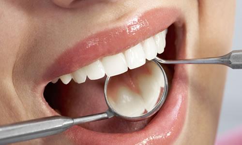 Gebelikte Diş Sağlığı