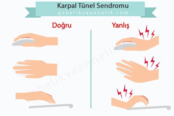 Karpal Tünel Sendromu Nasıl Önlenebilir?