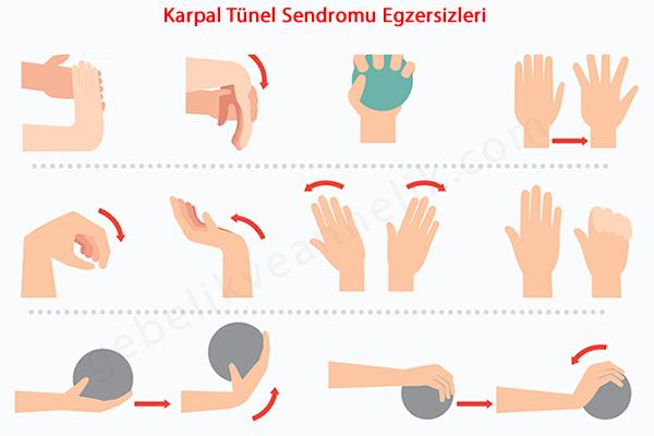 Karpal Tünel Sendromu Egzersizleri Neler?
