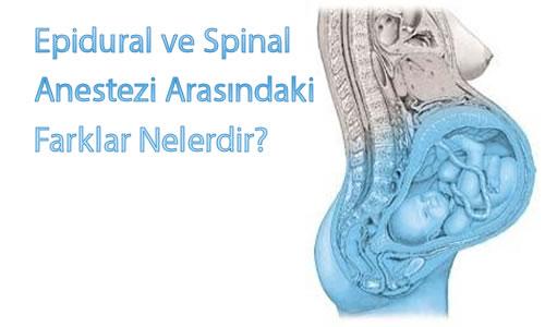 Epidural ve Spinal Anestezi Arasındaki