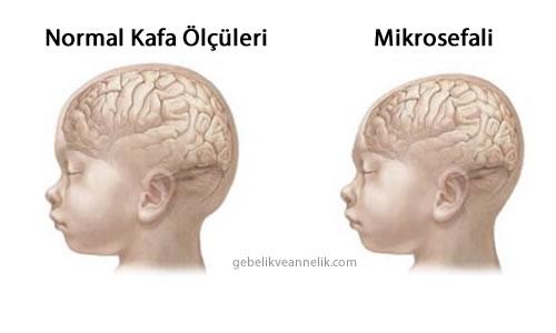Mikrosefali Hastalığı