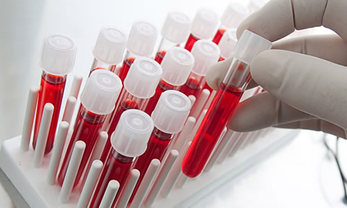Gebelikte Kan Testi Ne Zaman Yapilir