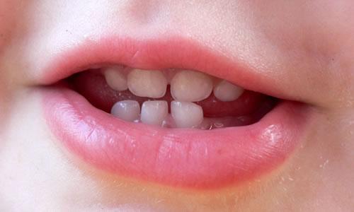 Süt Dişleri Ne Zaman Çıkar