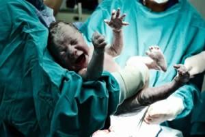 Nur Hanımın Sezaryen Doğum Öyküsü
