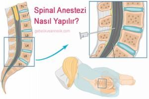 Spinal Anestezi Nedir?