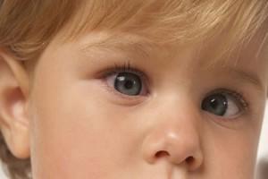 Bebeklerde Yalancı Şaşılık Nedir?